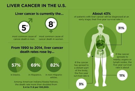 8.5-liver-cancer-on-the-rise-1500-WEB-1